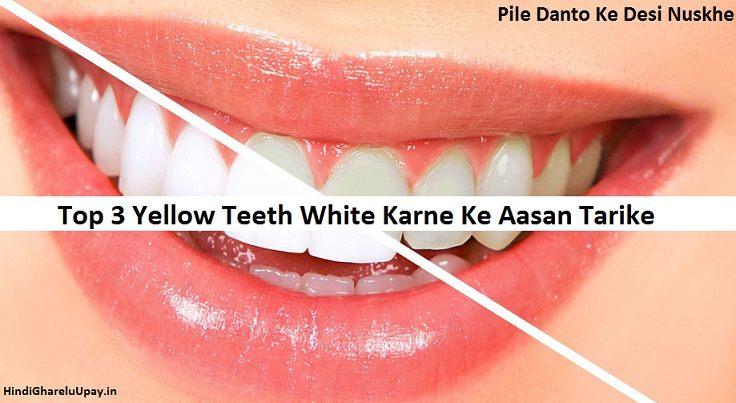 pile dant safed karne ke upay, teeth white karne ka tarika in hindi