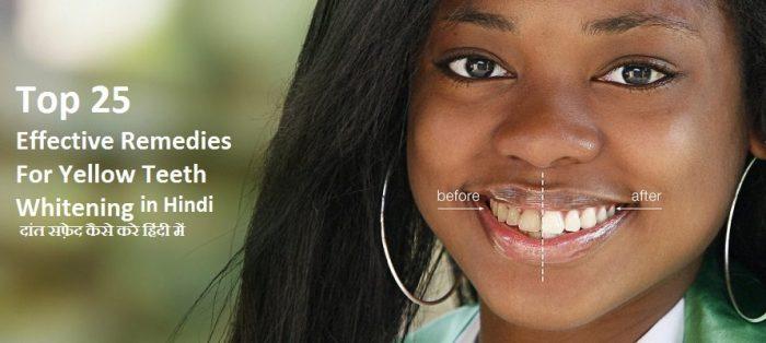 gharelu nuskhe for yellow teeth in hindi, homemade tips for whiter teeth in hindi