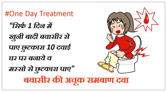 बवासीर की अचूक दवा, बवासीर की दवा, बवासीर का अचूक इलाज, बादी बवासीर की अचूक दवा, bawasir ki dawa