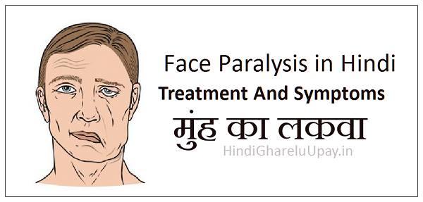 मुंह का लकवा, face paralysis in hindi, facial paralysis treatment in hindi, मुखमण्डल का लकवा