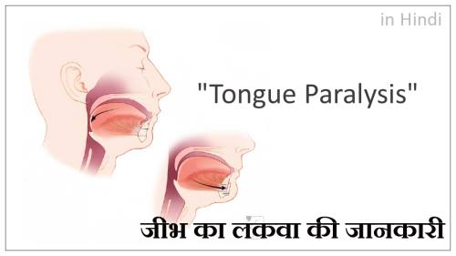 जीभ का लकवा, tongue paralysis in hindi, tongue paralysis treatment in hindi