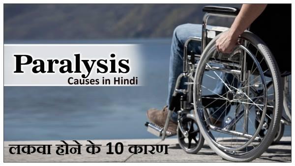 lakwa hone ke karan, paralysis causes in hindi, लकवा होने के कारण, लकवा रोग के कारण
