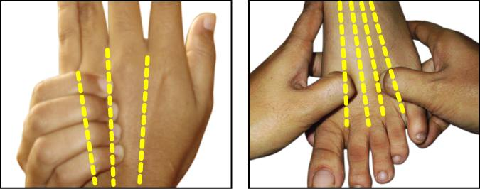 acupressure points for paralysis in hindi