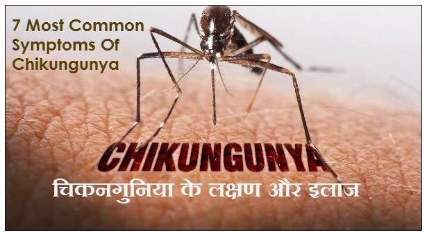 chikungunya symptoms in hindi, चिकनगुनिया के लक्षण, chikungunya ke lakshan, चिकनगुनिया के लक्षण और इलाज