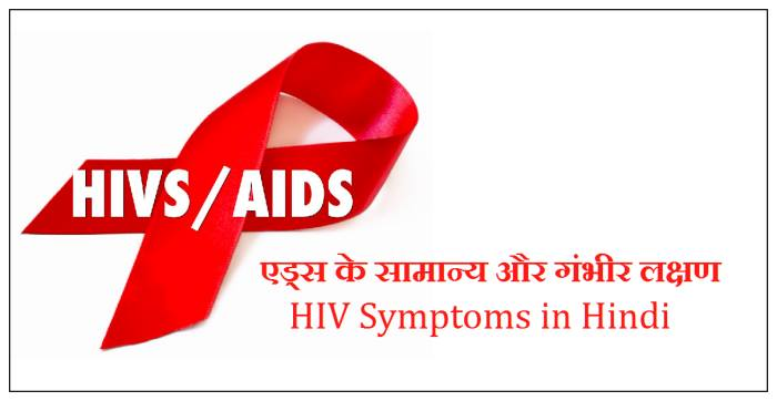 aids ke lakshan, hiv ke lakshan, aids symptoms in hindi, hiv symptoms in hindi