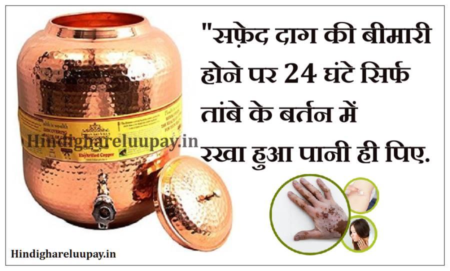 safed daag ka ilaj kya hai in hindi, safed daag ka gharelu upchar, safed daag ka upchar,