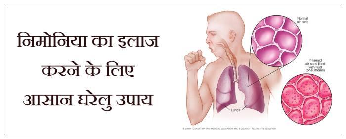 nimoniya ka ilaj, pneumonia in hindi, pneumonia ayurvedic treatment in hindi
