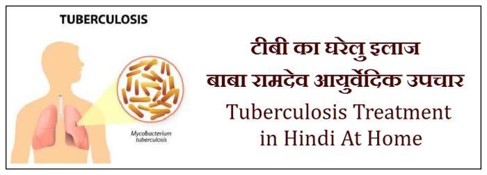 tb treatment in hindi, tuberculosis treatment in hindi