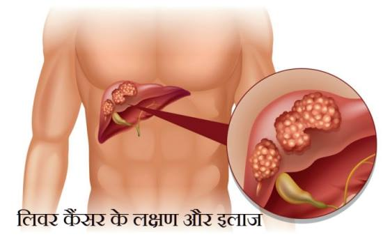 liver cancer in hindi