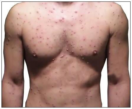 chicken pox symptoms in hindi