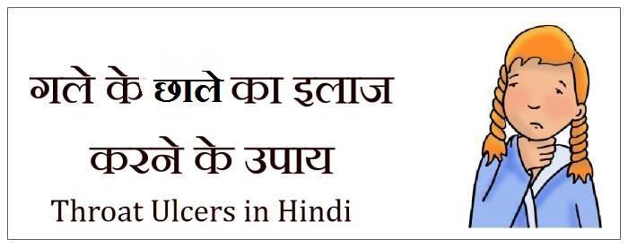 gale ke chale, gale ke chale in hindi, throat ulcers in hindi