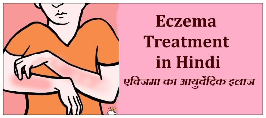 eczema in hindi, eczema treatment in hindi, eczema ka ilaj bataye