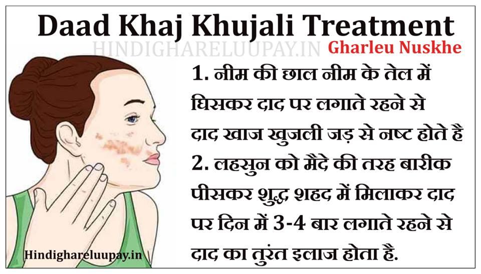 daad khujali treatment in hindi, daad treatment in hindi, daad khaj khujali treatment in hindi