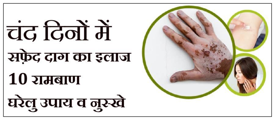 safed daag ka ilaj, safed daag ka gharelu ilaj, safed daag ka ilaj patanjali, safed daag treatment in hindi,