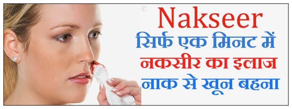 nakseer ka ilaj, nakseer ka ilaj in hindi, nakseer treatment in hindi, nak se khoon bahna