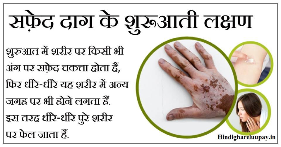 safed daag ke lakshan, सफेद दाग के लक्षण, सफेद दाग के शुरुआती लक्षण