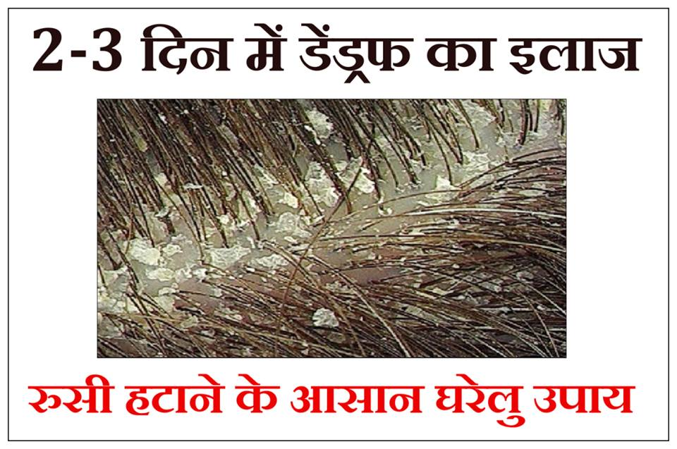 dandruff ka ilaj, dandruff treatment in hindi, dandruff in hindi