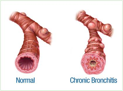 bronchitis in hindi, bronchitis kaise hota hai