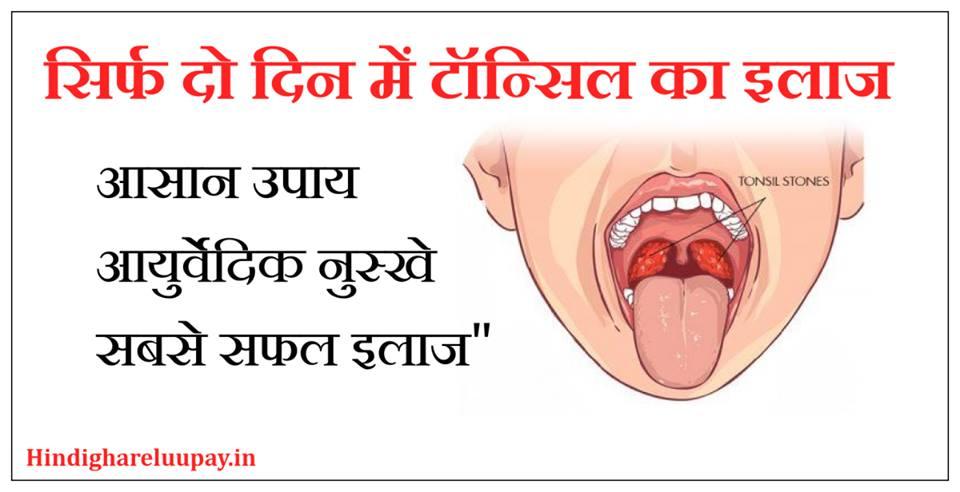 टॉन्सिल का इलाज, tonsil ka gharelu ilaj, tonsil ke upay, tonsil ki dawa,