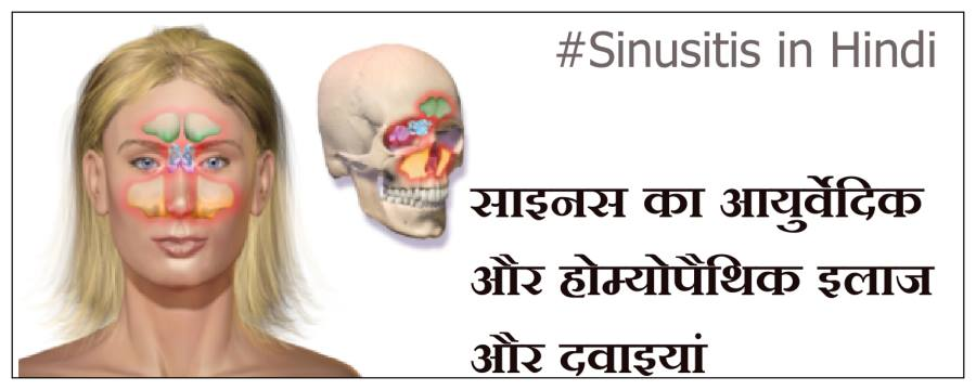 sinus treatment in ayurveda in hindi, sinus ka ilaj